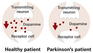 dopamine-producing nerve cells die off  leaving too little dopamine inDopamine Receptors Parkinsons Disease